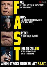 FAST for Stroke